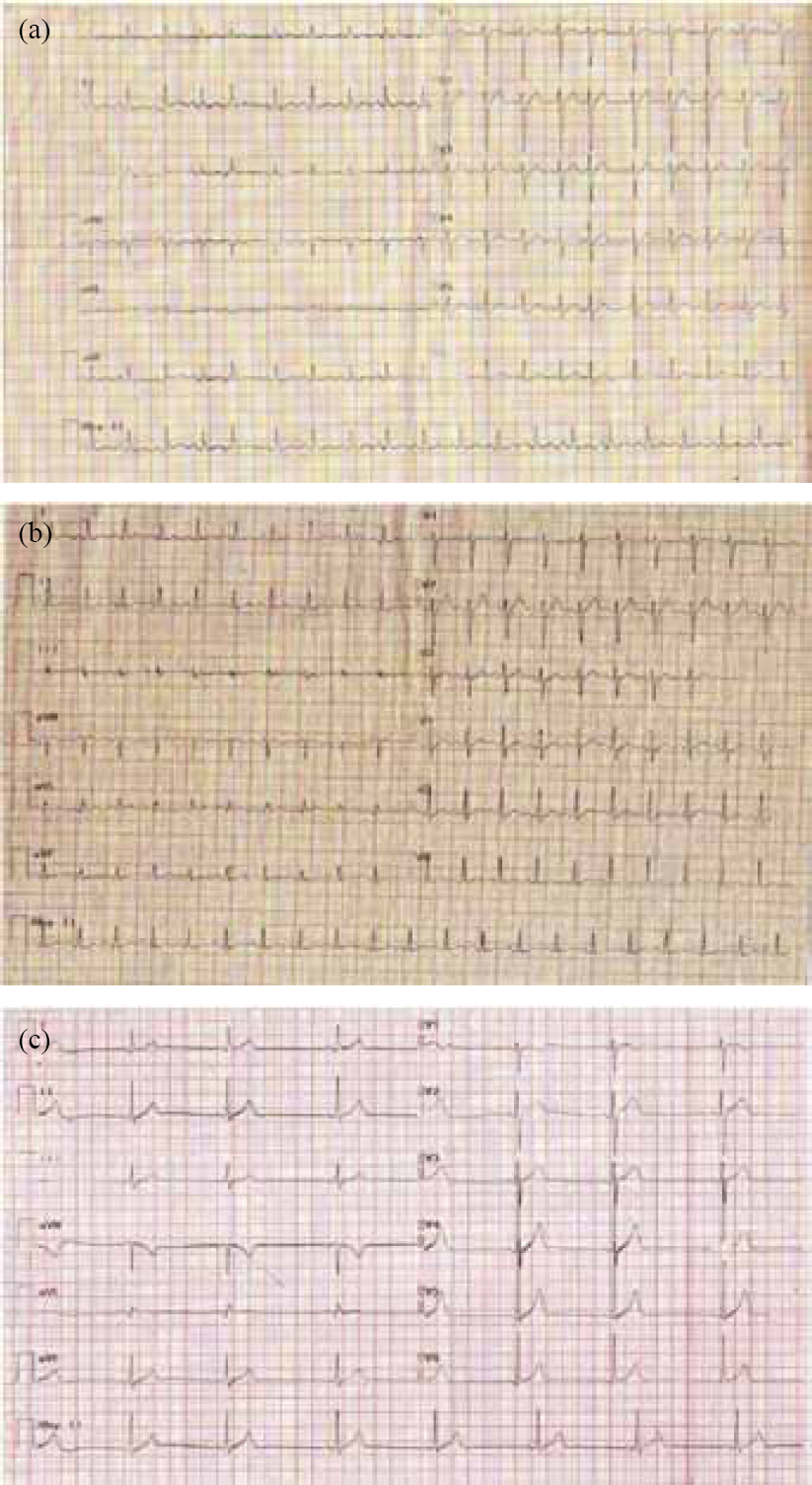 Figure 1: ECG of patient No. 8 showing premature atrial ectopic with tachycardia (a); patient No. 14 showing extreme tachycardia (b); and patient No. 20 showing sinus bradycardia (c).