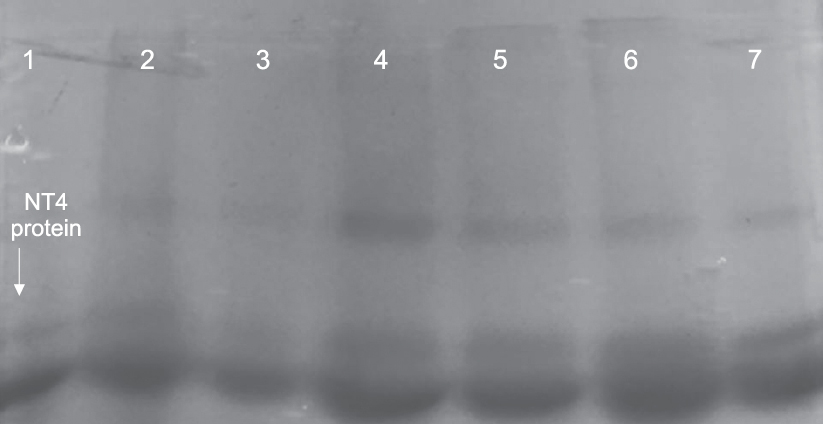 Figure 2: SDS-Page of <i>NT4</i> gene expression in transgenic <i>Leishmania major</i> on Days 3, 7, 10, 15 and 20 after transfection. Lane 1: Negative control; Lane 2: Wild-type as positive control; Lanes 3-7: Mutant strains on Days 3, 7, 10, 15 and 20, respectively after electroporation.